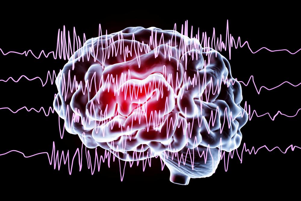 Epilepsja – olej CBD na padaczkę lekoodporną